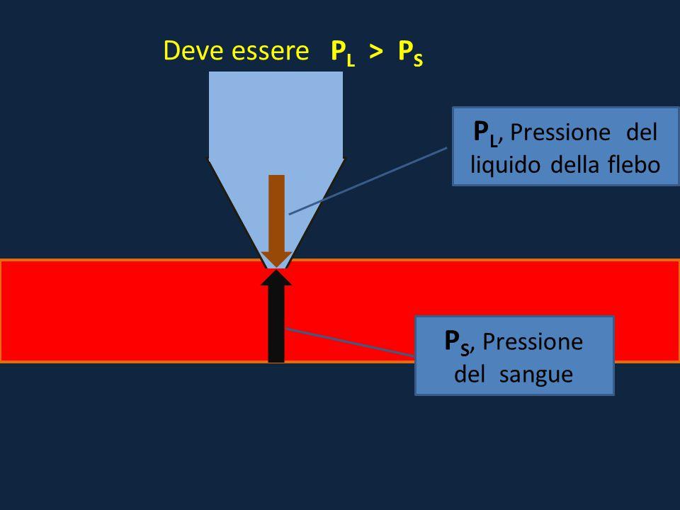 P S, Pressione del sangue P L, Pressione del liquido della flebo Deve essere P L > P S