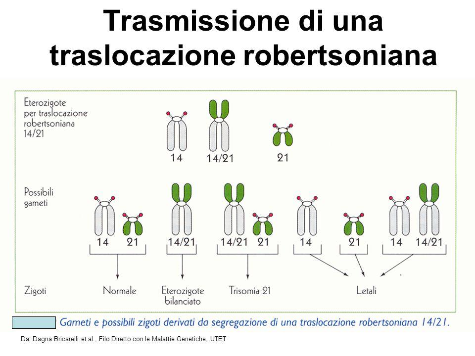 Trasmissione di una traslocazione robertsoniana Da: Dagna Bricarelli et al., Filo Diretto con le Malattie Genetiche, UTET