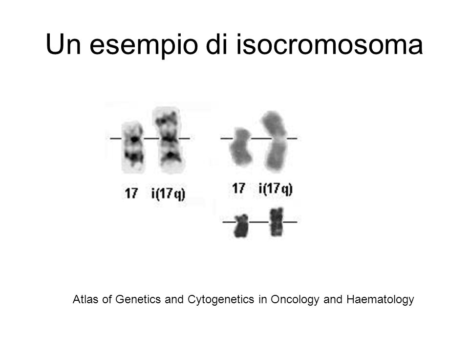 Un esempio di isocromosoma Atlas of Genetics and Cytogenetics in Oncology and Haematology