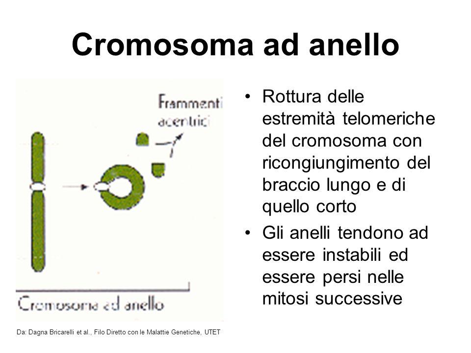 Cromosoma ad anello Rottura delle estremità telomeriche del cromosoma con ricongiungimento del braccio lungo e di quello corto Gli anelli tendono ad essere instabili ed essere persi nelle mitosi successive Da: Dagna Bricarelli et al., Filo Diretto con le Malattie Genetiche, UTET