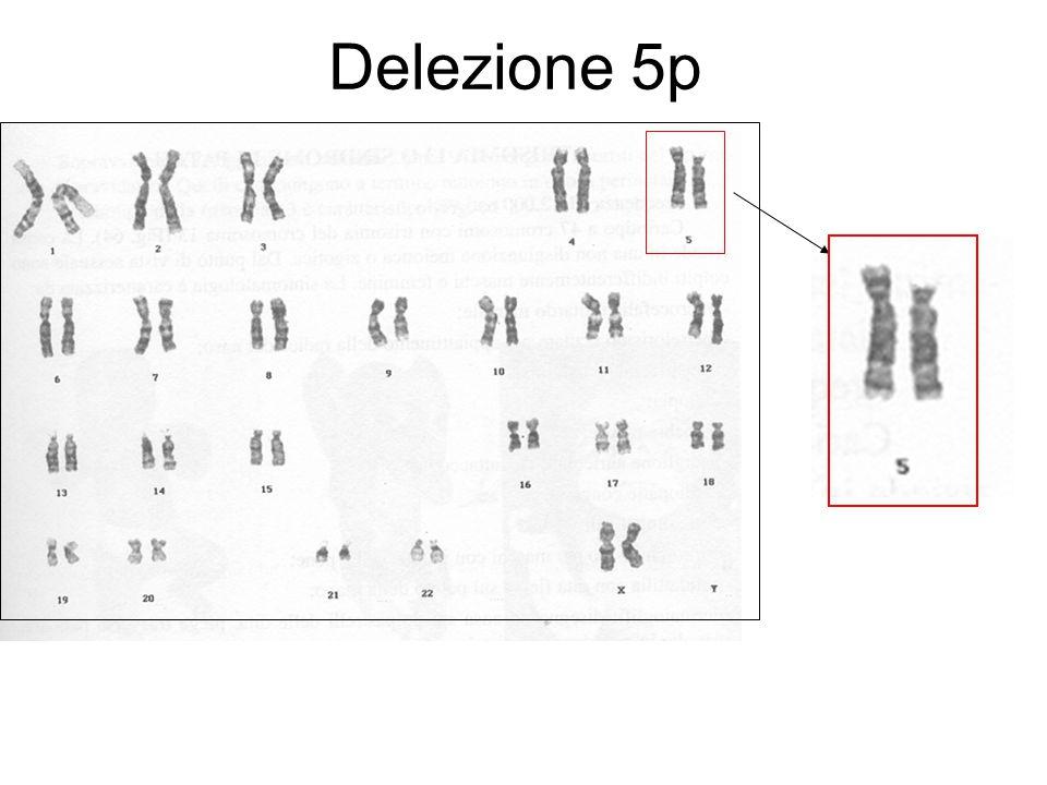 Isocromosoma Divisione in senso orizzontale anziché verticale dei cromatidi La duplicazione dei cromatidi da luogo a cromosomi con braccia lunghe e corte identiche Da: Dagna Bricarelli et al., Filo Diretto con le Malattie Genetiche, UTET