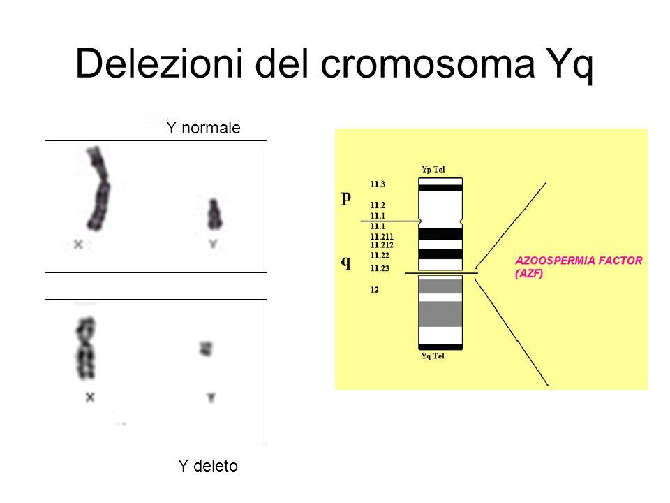 Delezioni del cromosoma Yq Y normale Y deleto