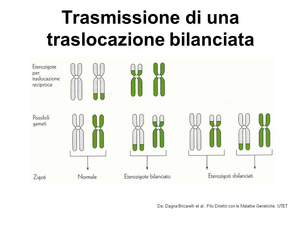 Traslocazione robertsoniana Coinvolge sempre due cromosomi acrocentrici Porta alla formazione di un cariotipo apparentemente a 45 cromosomi, ma in realtà con materiale genetico normale I portatori sono fenotipicamente normali Frequenza nella popolazione: 1/1000 Da: Dagna Bricarelli et al., Filo Diretto con le Malattie Genetiche, UTET