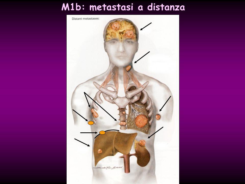 brain (BRA) pulmonary (PUL) osseous (OSS) hepatic (HEP) bone marrow (MAR) pleura (PLE) peritoneum (PER) M1b: metastasi a distanza adrenals (ADR) lymph nodes (LYM) skin (SKI) other T… N… M1b (HEP, BRA)
