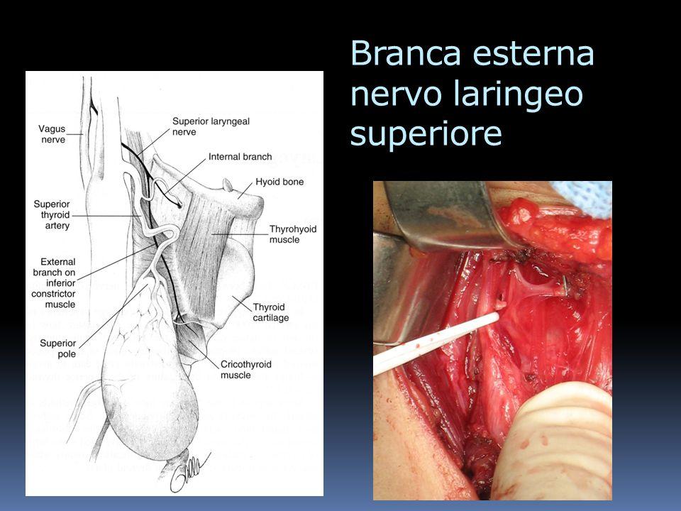 Branca esterna nervo laringeo superiore