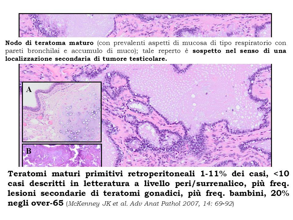 A B Nodo di teratoma maturo (con prevalenti aspetti di mucosa di tipo respiratorio con pareti bronchilai e accumulo di muco); tale reperto è sospetto