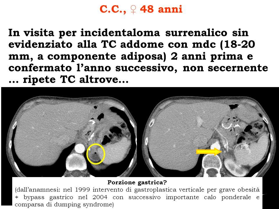 TC addome senza mdc (14.12.2007) Margini sfrangiati, densità 35 HU, sospetto carcinoma