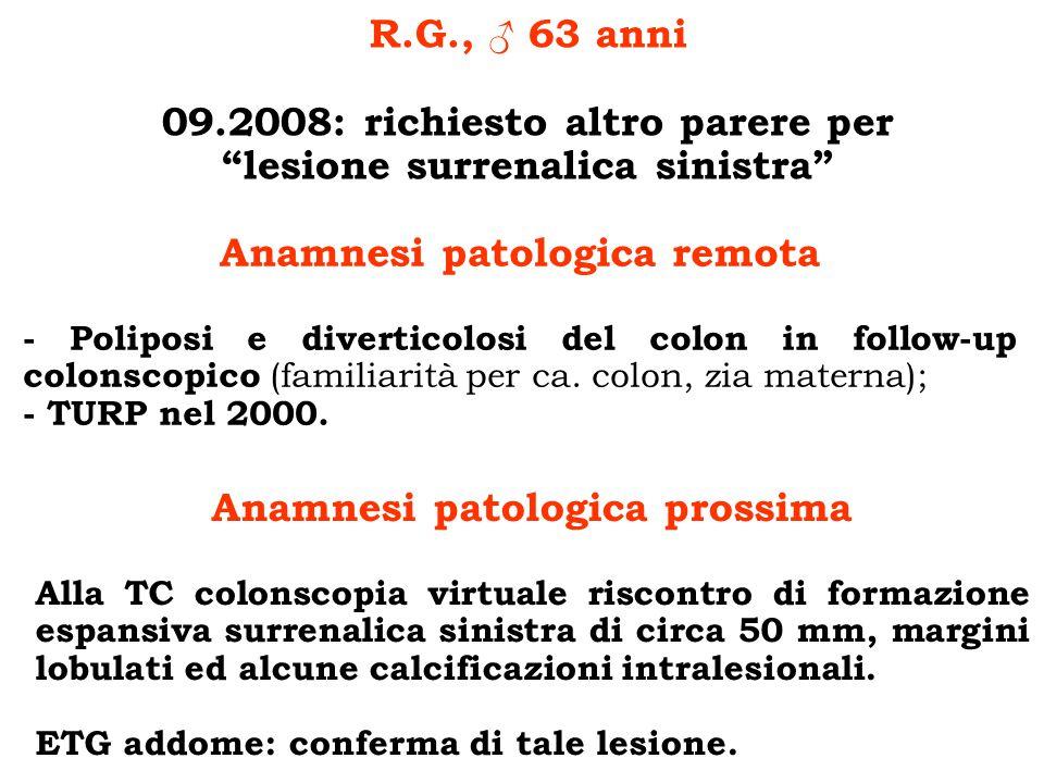 Esami ematochimici ed ormonali - Ematochimici di routine incluso elettroliti: di norma - Metanefrine urinarie: 100 e 200 μg/die (20-345) - Normetanefrine urinarie : 237 e 180 μg/die (30-440) - CGA: 20.70 U/l (< 18) - DHEAS: 41.50 μg/dl (70-390) - Testosterone: 3.14 ng/ml (1.74-8.43) - Cortisolo ore 8: 17.90 μg/dl (8-25) - Test di Nugent: cortisolo 1.5 μg/dl