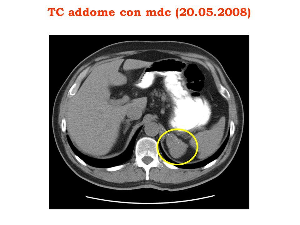 TC addome con mdc (20.05.2008)