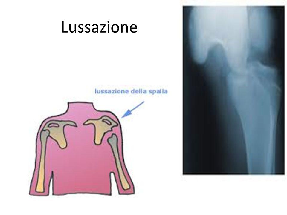 Lussazione