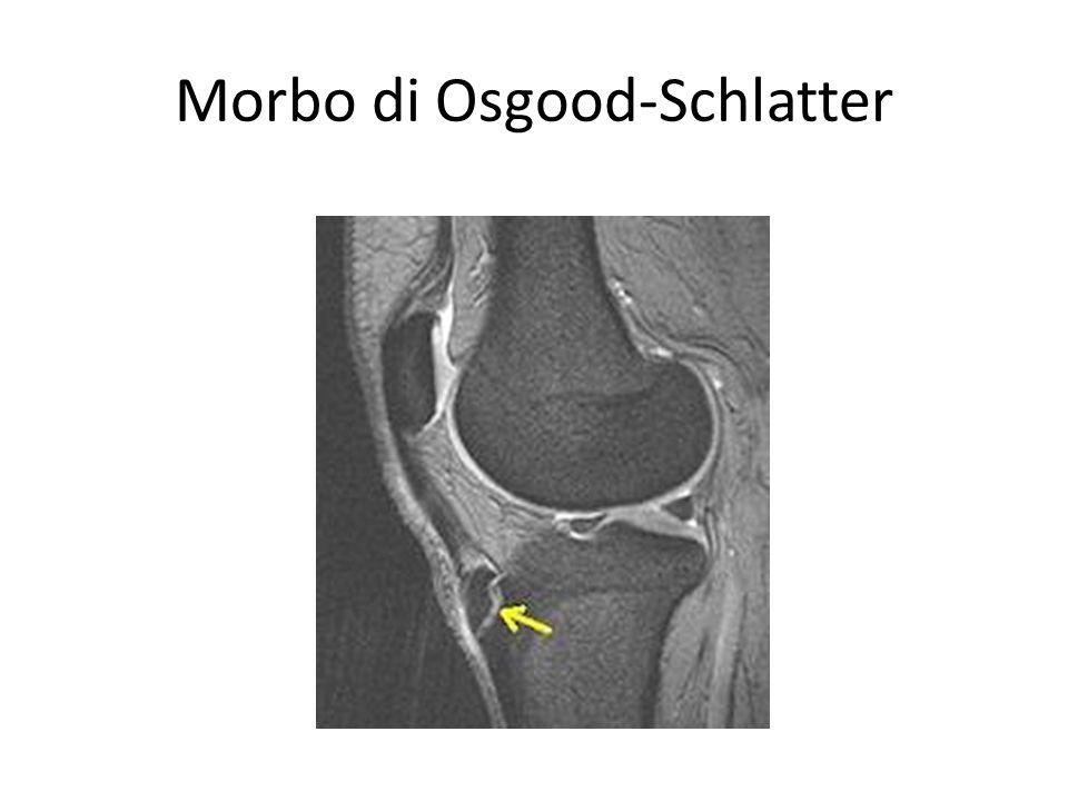 Morbo di Osgood-Schlatter