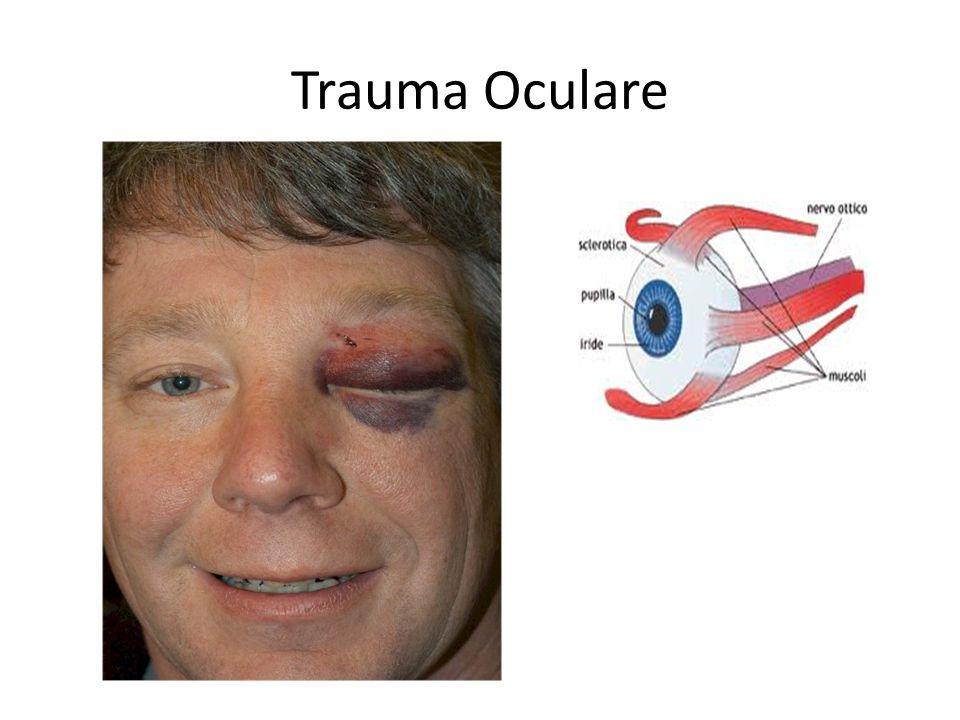 Trauma Oculare