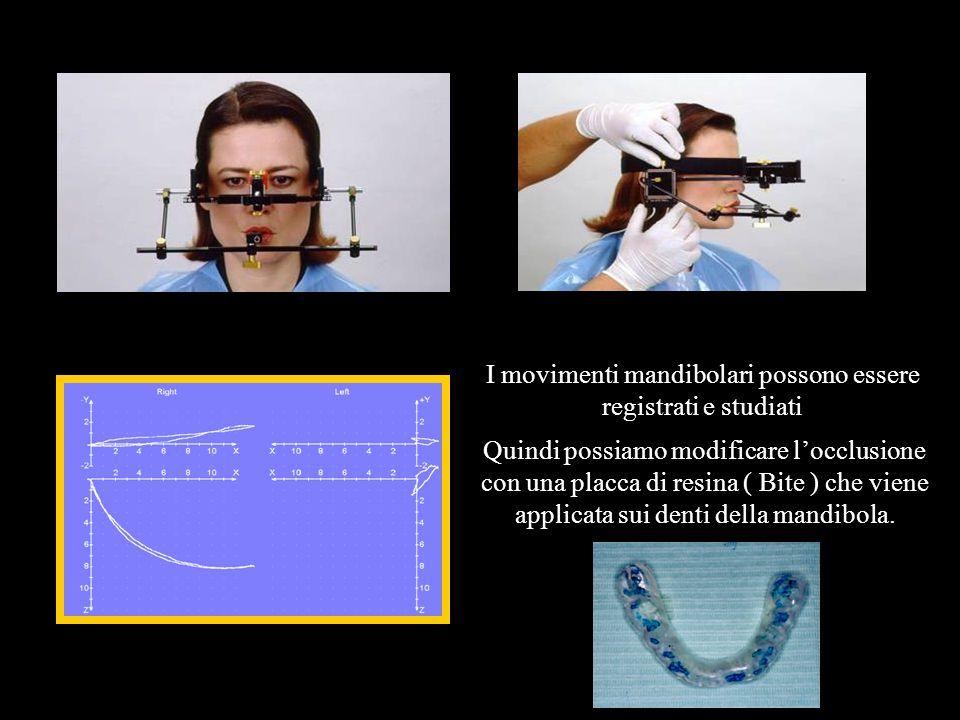 I movimenti mandibolari possono essere registrati e studiati Quindi possiamo modificare locclusione con una placca di resina ( Bite ) che viene applic