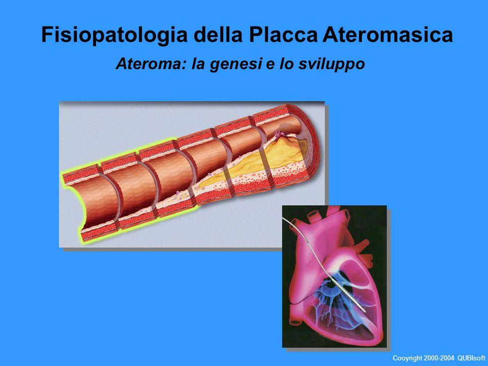 Muscolatura Liscia Lume vascolare Spazio subendoteliale Endotelio Formazione e necrosi delle cellule schiumose Globuli rossi LDL Monociti Produzione LDL ossidati Cooyright 2000-2004 QUBIsoft