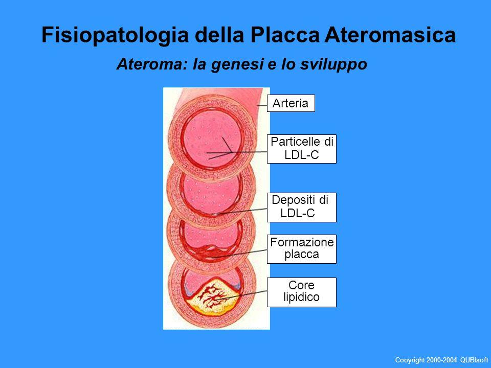 Arteria Particelle di LDL-C Depositi di LDL-C Formazione placca Core lipidico Fisiopatologia della Placca Ateromasica Ateroma: la genesi e lo sviluppo