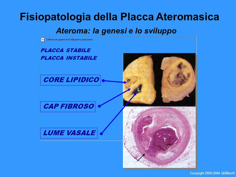 PLACCA STABILE PLACCA INSTABILE CAP FIBROSO CORE LIPIDICO LUME VASALE Fisiopatologia della Placca Ateromasica Ateroma: la genesi e lo sviluppo Cooyrig