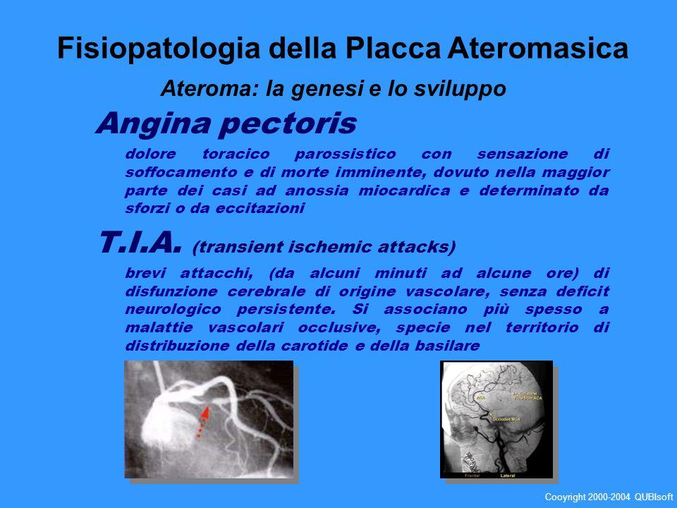 Angina pectoris dolore toracico parossistico con sensazione di soffocamento e di morte imminente, dovuto nella maggior parte dei casi ad anossia mioca