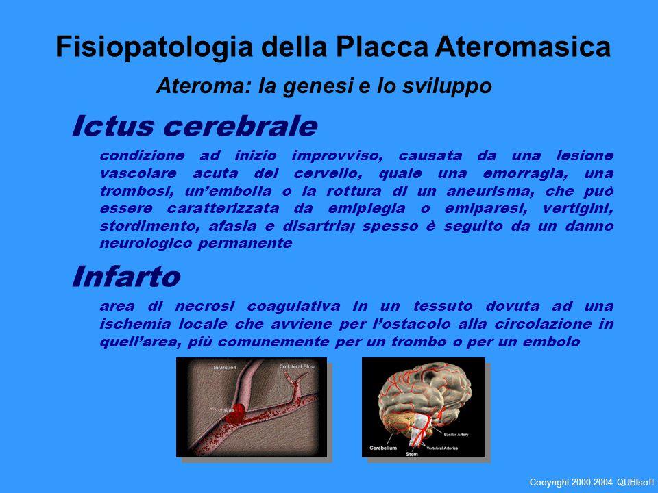 Ictus cerebrale condizione ad inizio improvviso, causata da una lesione vascolare acuta del cervello, quale una emorragia, una trombosi, unembolia o l