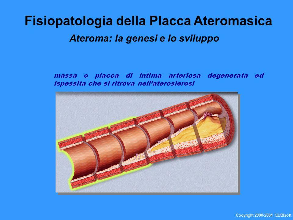 massa o placca di intima arteriosa degenerata ed ispessita che si ritrova nellateroslerosi Fisiopatologia della Placca Ateromasica Ateroma: la genesi