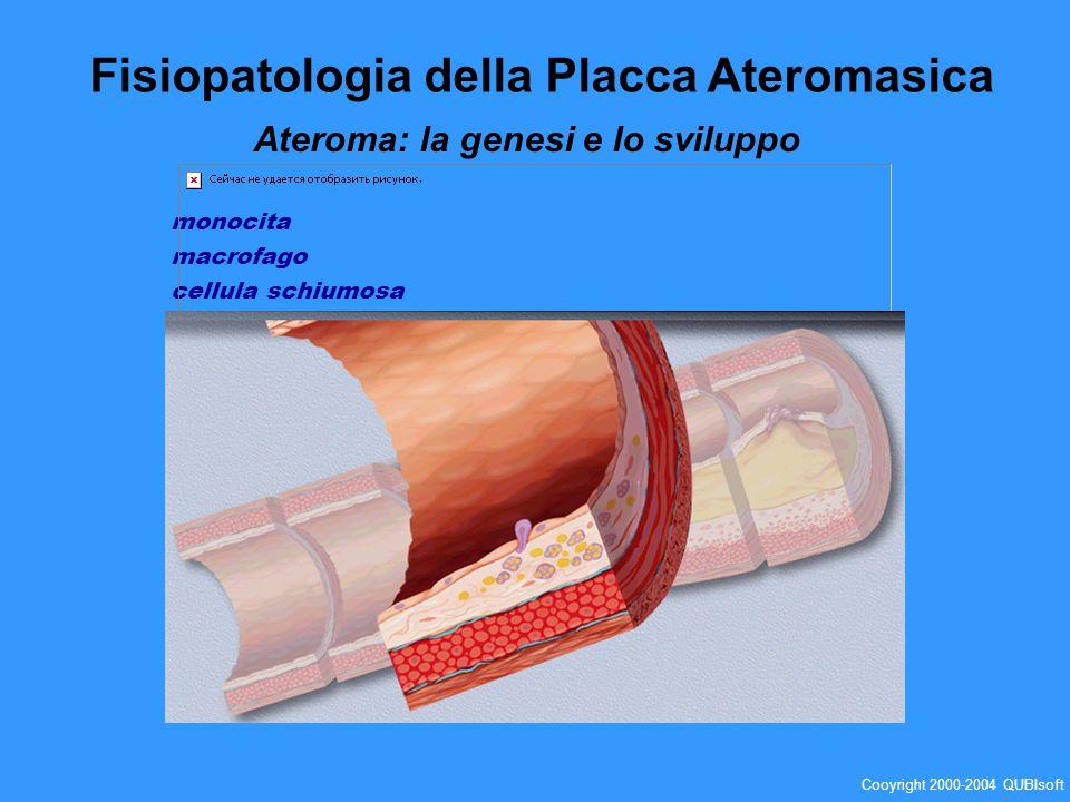 Trombo aggregazione dei fattori del sangue, principalmente di piastrine e fibrina, che inglobano gli elementi cellulari, che frequentemente provoca unostruzione vascolare al punto della sua formazione Embolo coagulo o altro tappo proveniente da un altro vaso e spinto in un vaso più piccolo che ne risulta ostruito Fisiopatologia della Placca Ateromasica Ateroma: la genesi e lo sviluppo Cooyright 2000-2004 QUBIsoft