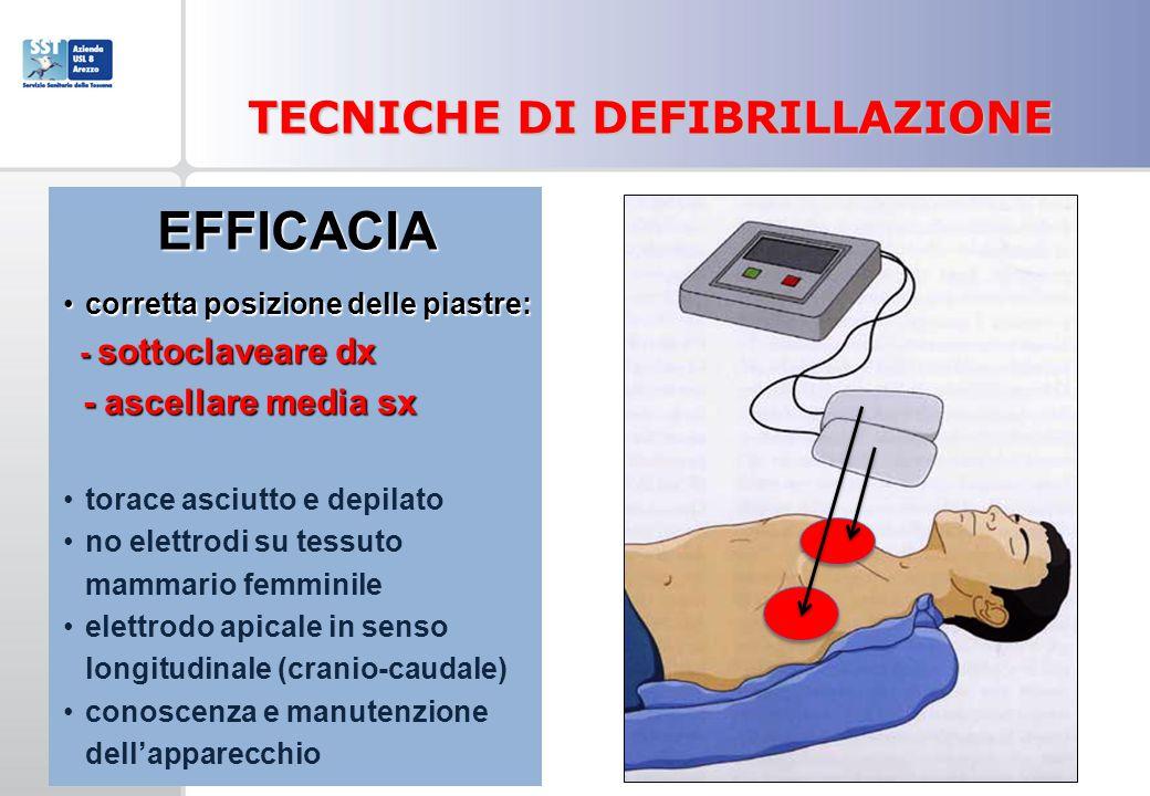 TECNICHE DI DEFIBRILLAZIONE EFFICACIA corretta posizione delle piastre:corretta posizione delle piastre: - sottoclaveare dx - sottoclaveare dx - ascel