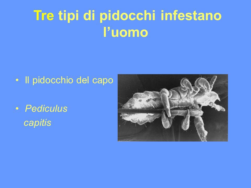 Tre tipi di pidocchi infestano luomo Il pidocchio del capo Pediculus capitis