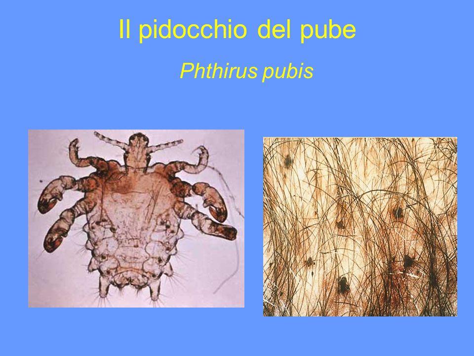 Il pidocchio del pube Phthirus pubis