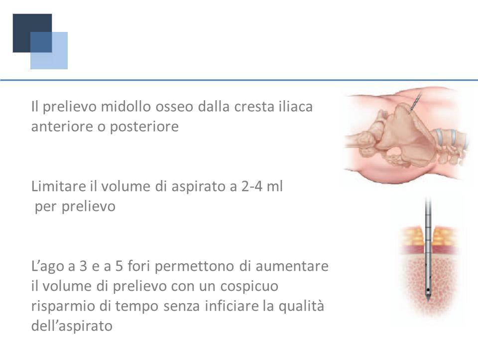 Il prelievo midollo osseo dalla cresta iliaca anteriore o posteriore Limitare il volume di aspirato a 2-4 ml per prelievo Lago a 3 e a 5 fori permetto