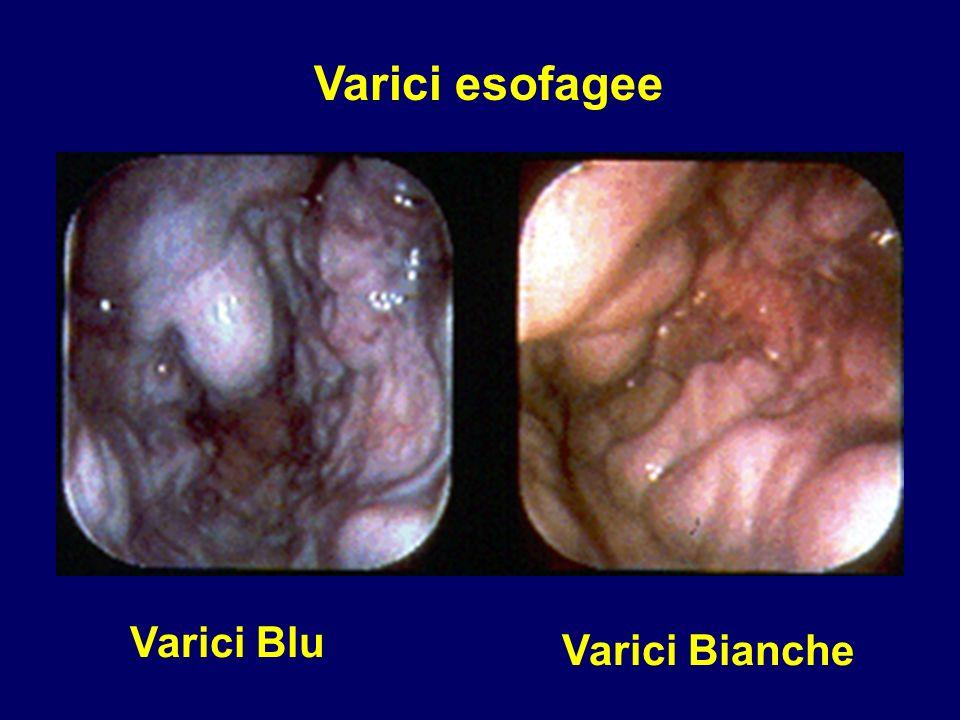 Varici Blu Varici Bianche Varici esofagee