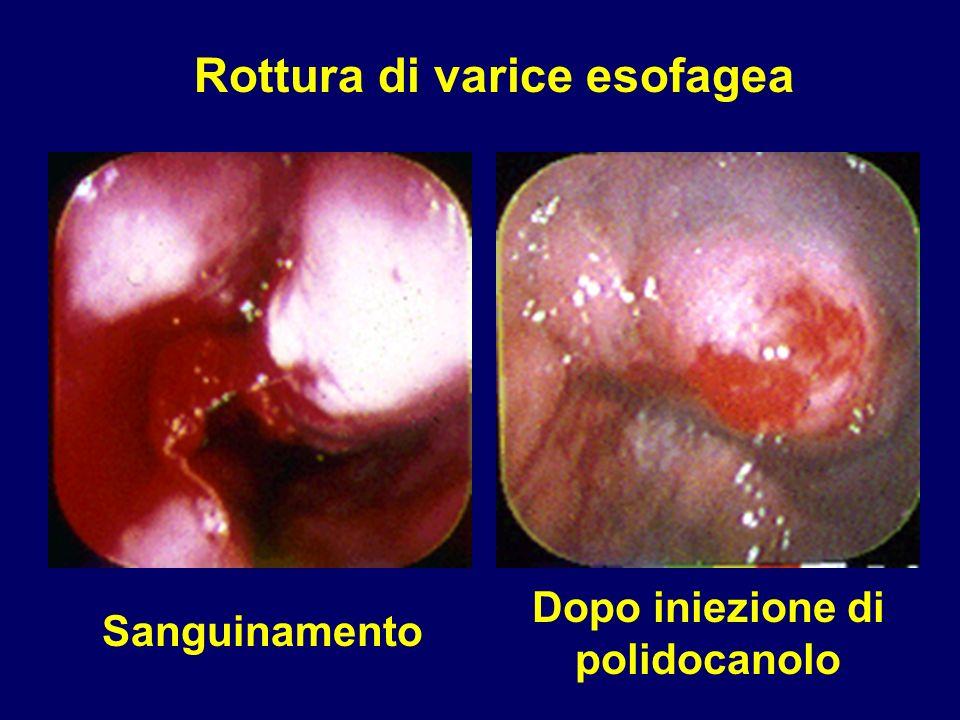 Rottura di varice esofagea Sanguinamento Dopo iniezione di polidocanolo