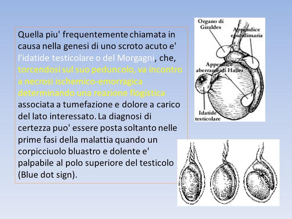 Quella piu' frequentemente chiamata in causa nella genesi di uno scroto acuto e' l'idatide testicolare o del Morgagni, che, torcendosi sul suo pedunco