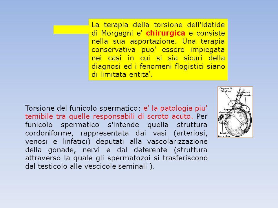 Torsione del funicolo spermatico: e' la patologia piu' temibile tra quelle responsabili di scroto acuto. Per funicolo spermatico s'intende quella stru