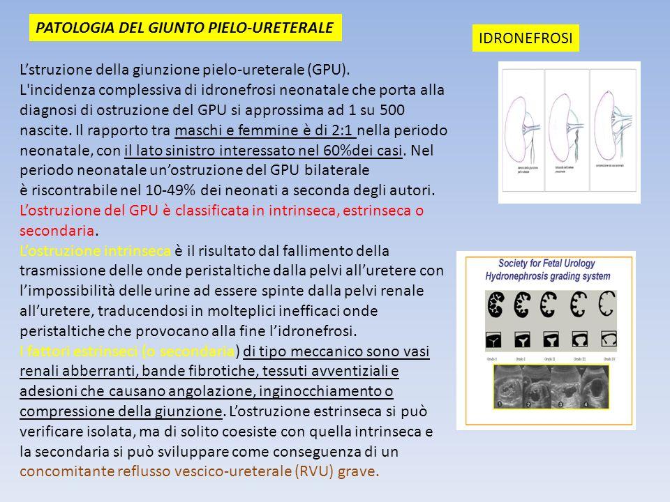 PATOLOGIA DEL GIUNTO PIELO-URETERALE Lstruzione della giunzione pielo-ureterale (GPU). L'incidenza complessiva di idronefrosi neonatale che porta alla