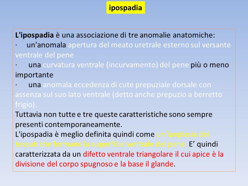 L'ipospadia è una associazione di tre anomalie anatomiche: · un'anomala apertura del meato uretrale esterno sul versante ventrale del pene · una curva