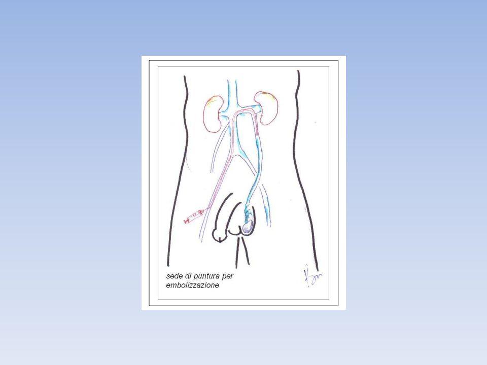 L ipospadia è una associazione di tre anomalie anatomiche: · un anomala apertura del meato uretrale esterno sul versante ventrale del pene · una curvatura ventrale (incurvamento) del pene più o meno importante · una anomala eccedenza di cute prepuziale dorsale con assenza sul suo lato ventrale (detto anche prepuzio a berretto frigio).