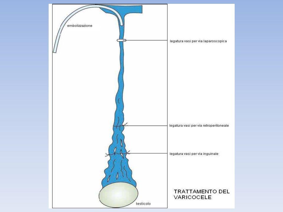 Con il termine di criptorchidismo ci si riferisce allassenza di uno o di entrambi i testicoli nello scroto.