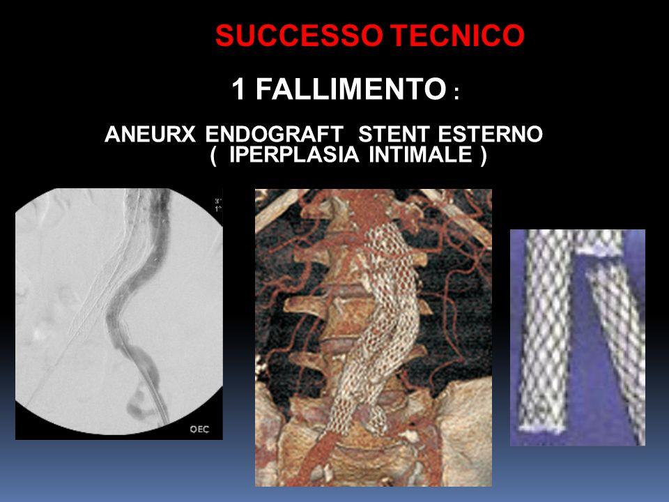 1 FALLIMENTO : ANEURX ENDOGRAFT STENT ESTERNO ( IPERPLASIA INTIMALE ) SUCCESSO TECNICO