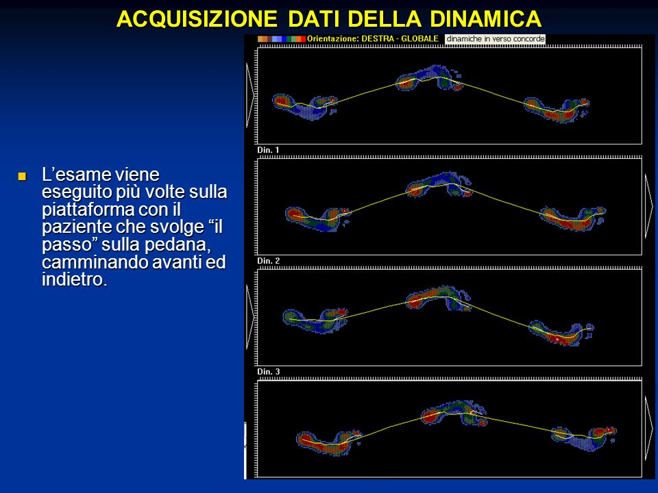 ACQUISIZIONE DATI DELLA DINAMICA Lesame viene eseguito più volte sulla piattaforma con il paziente che svolge il passo sulla pedana, camminando avanti