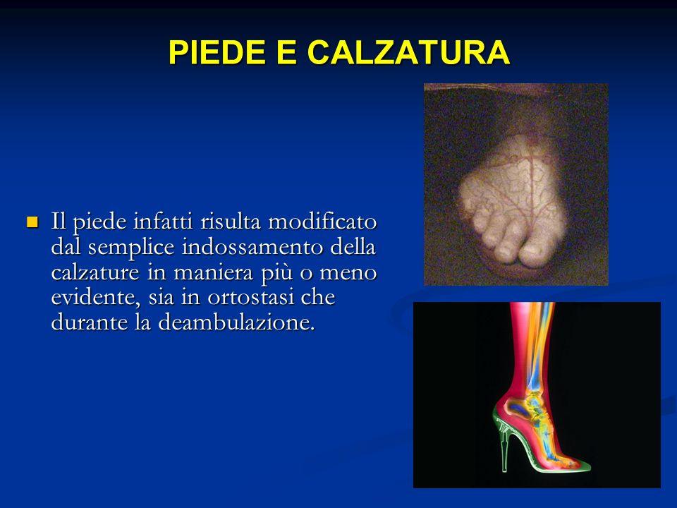 PIEDE E CALZATURA Il piede infatti risulta modificato dal semplice indossamento della calzature in maniera più o meno evidente, sia in ortostasi che d