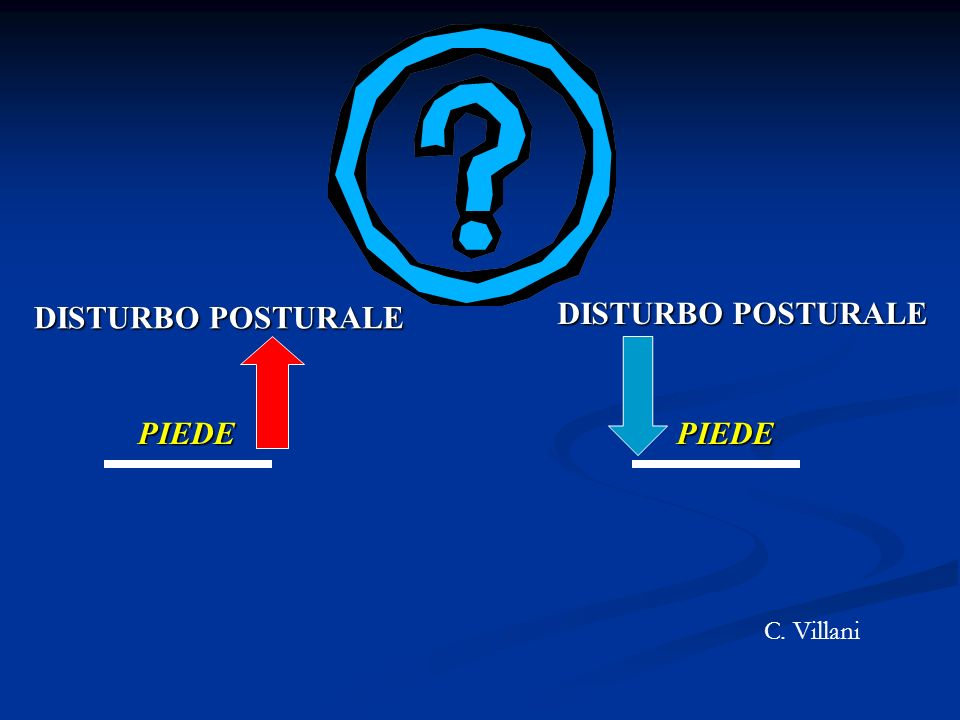 PIEDE DISTURBO POSTURALE PIEDE C. Villani