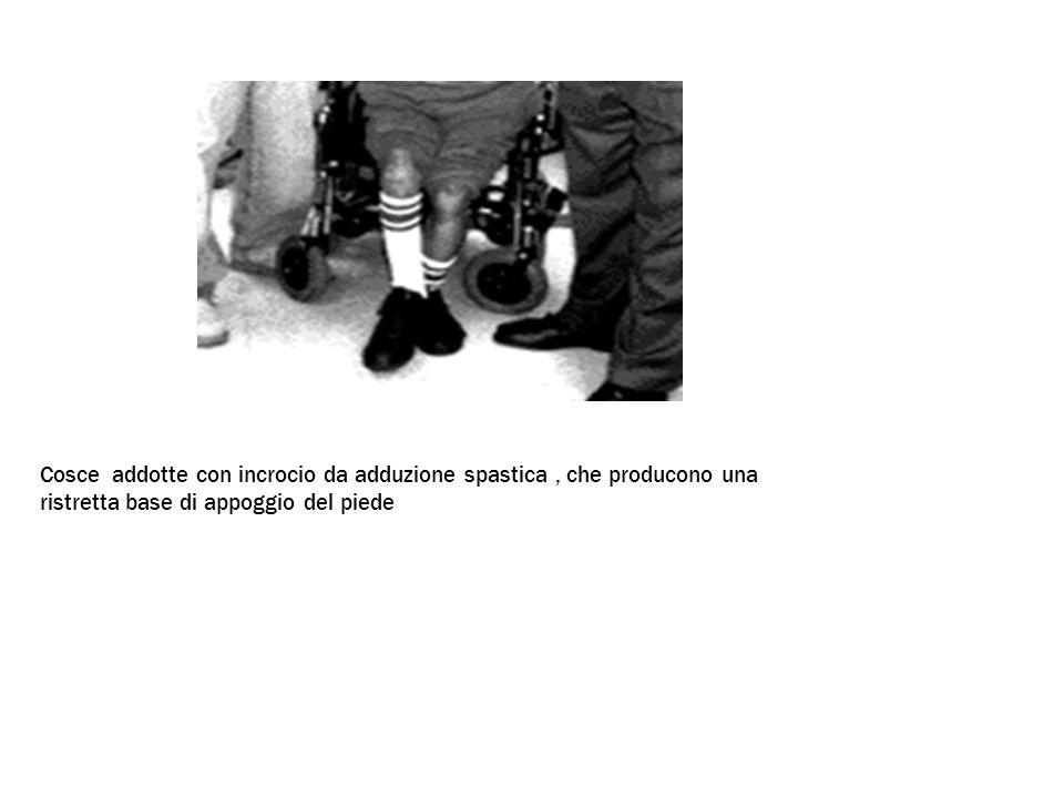 Cosce addotte con incrocio da adduzione spastica, che producono una ristretta base di appoggio del piede