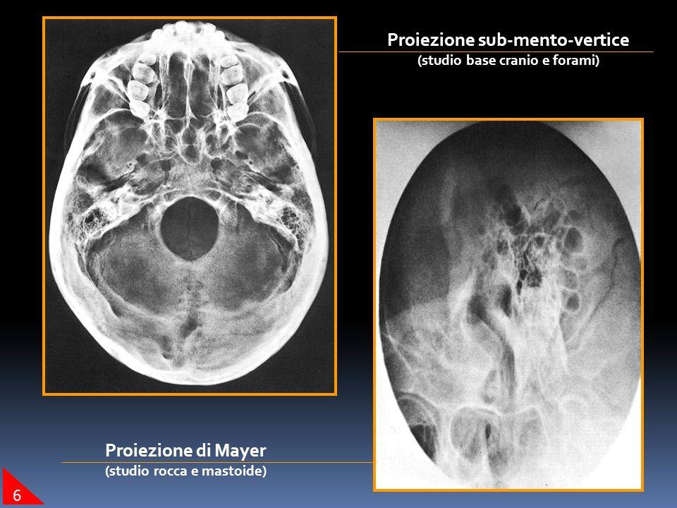 Proiezione sub-mento-vertice (studio base cranio e forami) Proiezione di Mayer (studio rocca e mastoide) 6