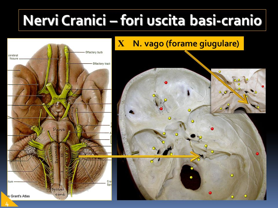 Nervi Cranici – fori uscita basi-cranio X N. vago (forame giugulare) 4