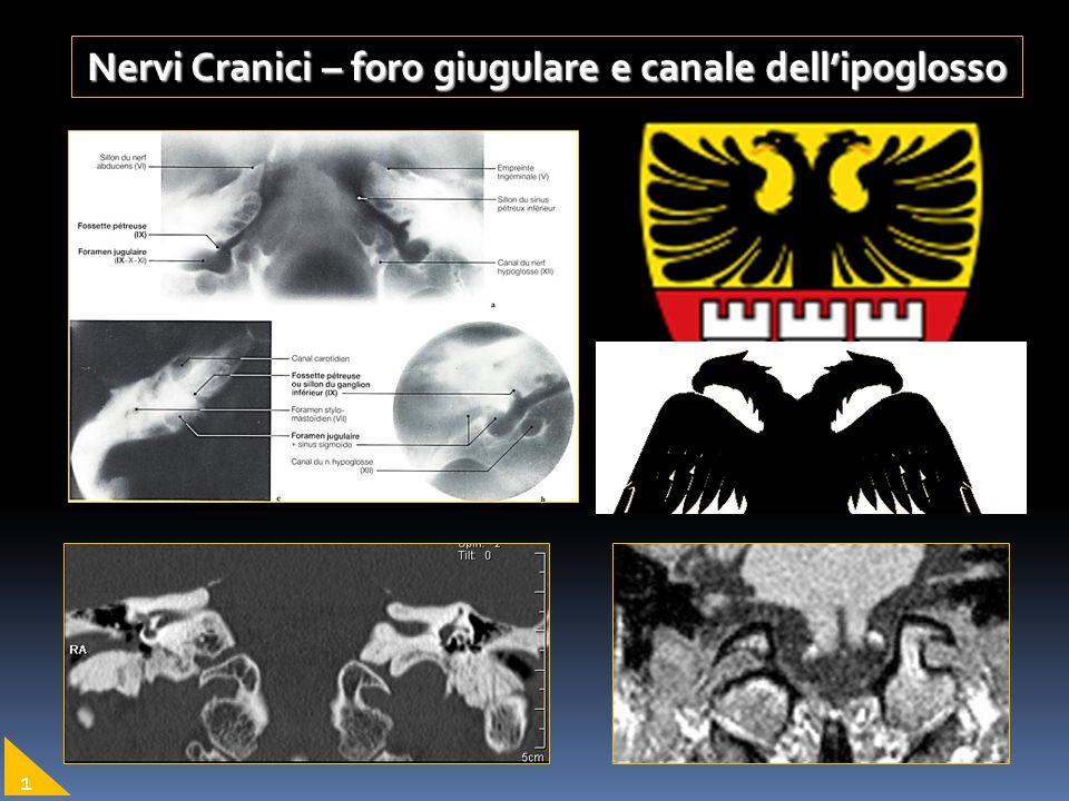Nervi Cranici – foro giugulare e canale dellipoglosso 1