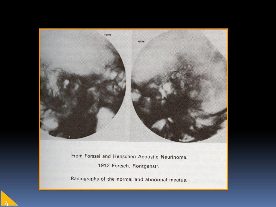 Nervi Cranici VII N.facciale VIII N. vestibolo-cocleare IX N.