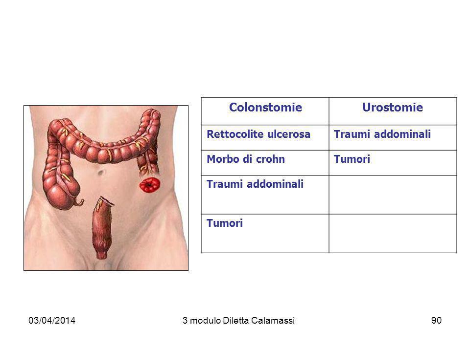 03/04/20143 modulo Diletta Calamassi90 ColonstomieUrostomie Rettocolite ulcerosaTraumi addominali Morbo di crohnTumori Traumi addominali Tumori