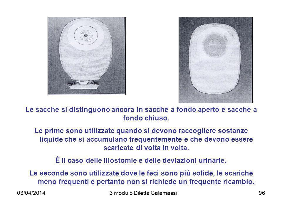 03/04/20143 modulo Diletta Calamassi96 Le sacche si distinguono ancora in sacche a fondo aperto e sacche a fondo chiuso. Le prime sono utilizzate quan