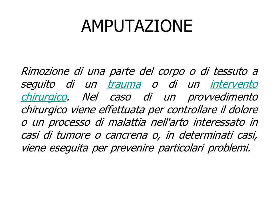 AMPUTAZIONE Rimozione di una parte del corpo o di tessuto a seguito di un trauma o di un intervento chirurgico. Nel caso di un provvedimento chirurgic