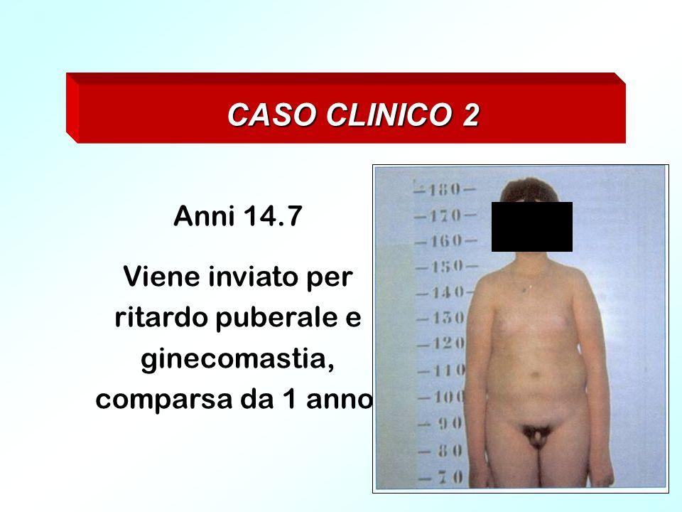 CASO CLINICO 2 Anni 14.7 Viene inviato per ritardo puberale e ginecomastia, comparsa da 1 anno.