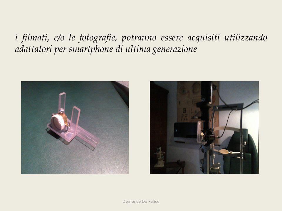 i filmati, e/o le fotografie, potranno essere acquisiti utilizzando adattatori per smartphone di ultima generazione Domenco De Felice